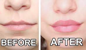 9 Simple Tips to Keep your Lips Beautiful
