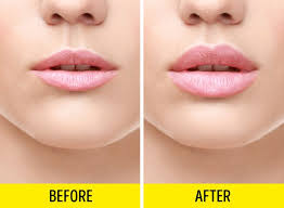 how to get bigger lips permanently without surgery
